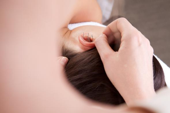 Junge Frau wird mit Akupunktur am Ohr behandelt.