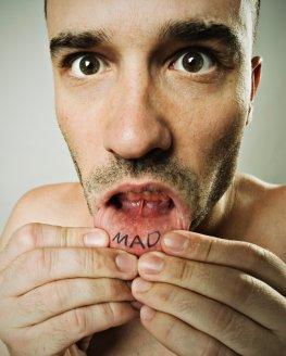 Entzündung der Mundschleimhaut - Aphthen in der Mundhöhle