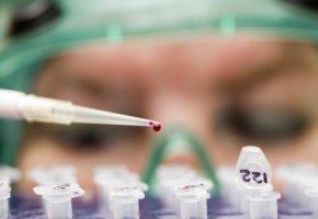 Arbeit im Labor: Zellkulturen mit Amanitin