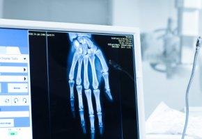 Auswertung einer Röntgenaufnahme auf einem Computer