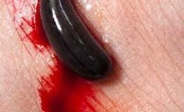 Blutegeltherapie - der Blutegel saugt das Blut ab