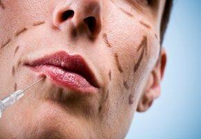 Botox für aufgesprizte Lippen