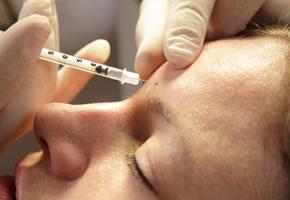 Botox wird in die Stirn gespritzt