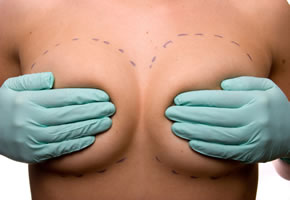 Brustverkleinerung z.B. bei Rückenschmerzen