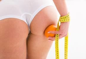 Cellulite auch Orangenhaut genannt