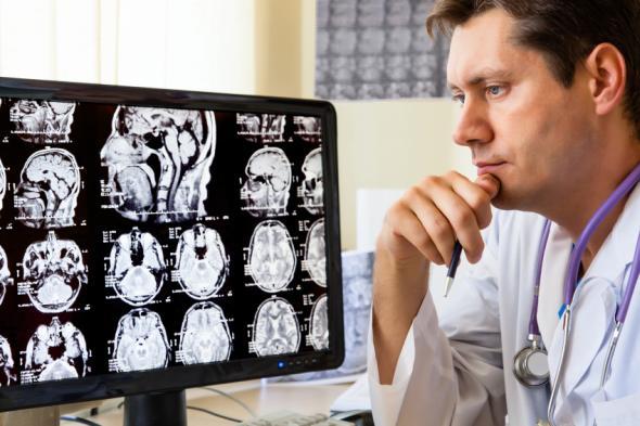 Arzt sitzt an einem Bildschirm und begutachtet die tomographische Auswertungen des Gehirns