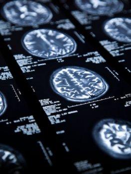 CRT von einem Schädel-Hirn-Trauma