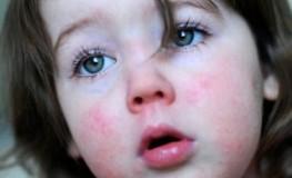 Das Mädchen ist an Scharlach erkrankt - typisch der Ausschlag im Gesicht