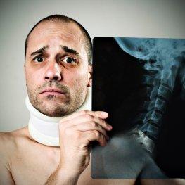 Die Halswirbelsäule - der Patient hat ein HWS-Syndrom nach einem Unfall