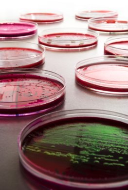 Das EHEC-Bakterium als Kultur im Petriglas