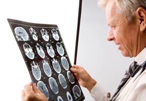 Ein Arzt schaut sich den MRI Scan an