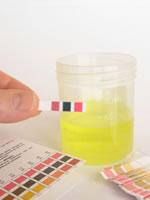 Eine Urinprobe für einen Test