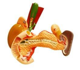 Entzündung der Bauchspeicheldrüse