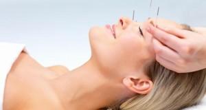 Beauty-Behandlung mit einer Facial Acupuncture