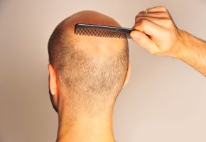 Haarausfall bei einem Mann