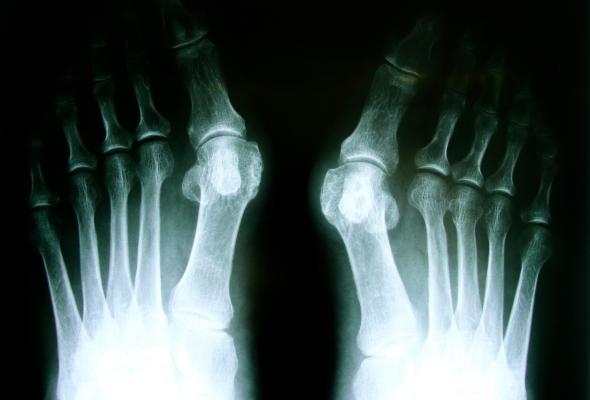 Ein Hallux valgus entsteht durch das tragen von zu engen Schuhen.