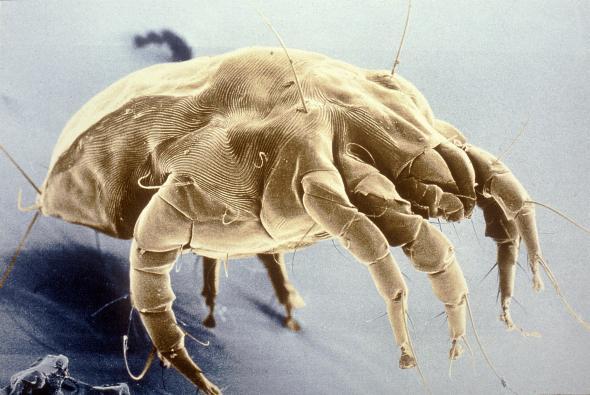 Die Hausstaubmilbe unter dem Mikroskop