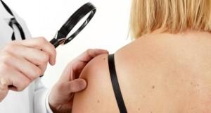 Ein Hautarzt untersucht eine Patientin auf Melanome.