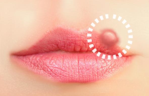 Herpesviren: Lippenherpes an der Oberlippe einer Frau.