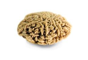 Kalziumoxalat - ein Nierenstein in der Nahaufnahme