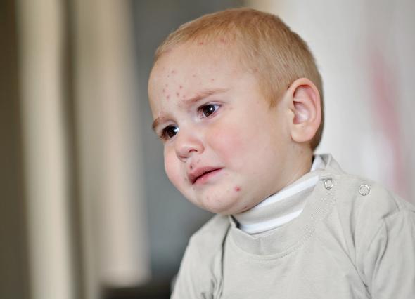 Kinderkrankheit Windpocken - kleiner Junge hat Hautausschlag.