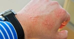 Bei einer Krätze handelt es sich um eine Hauterkrankung, die durch Krätzemilben verursacht wird.