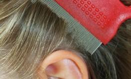 Kopfläuse - Läusebefall: Haare kämmen mit einem Läusekamm