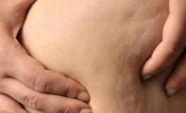Lipektomie - Das entfernte Körperfett taucht an anderer Stelle wieder auf