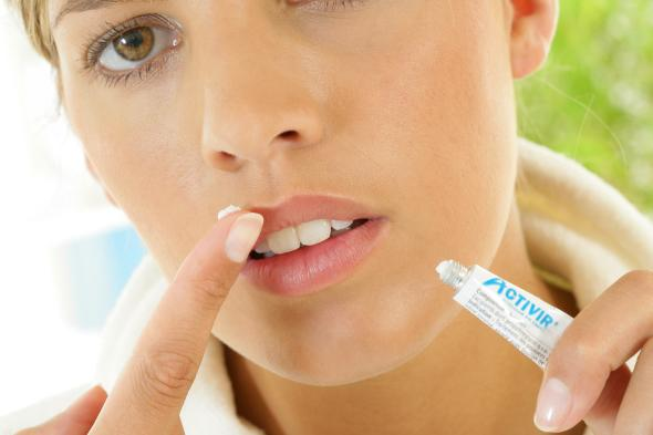 Herpes Simplex - Lippenherpes brennt auf den Lippen.
