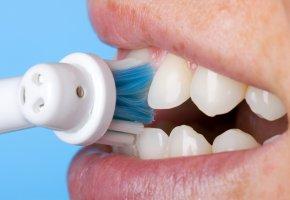 Mit der richtigen Zahnhygiene ggen Karies ankämpfen