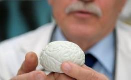 Neurologe mit einem Gehirn-Modell