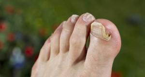 Onychomykose - Der Fußnagel ist vom Nagelpilz befallen.