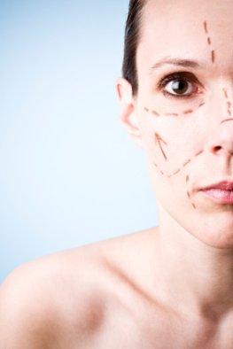 Schönheitschirurgie - Unters Messer für die Schönheit
