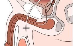 Vasektomie: Die Sterilisation beim Mann