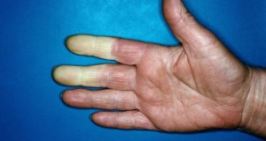 Die Finger werden nicht mehr richtig durchblutet.