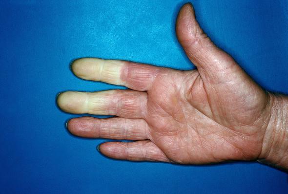 Raynaud-Syndrom: Weißfingerkrankheit lässt Finger weiß und taub werden.
