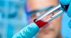 Neue Hoffnung für Multiple Sklerose Patienten - der Wirkstoff Fumarsäure hilft nicht nur bei Schuppenflechte. Bild: © fotolia.de