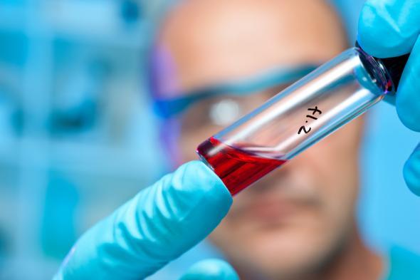 Wissenschaftler hält ein Röhrchen mit Flüssigkeit in die Kamera