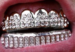 Zahnschmuck – Twinkles, Dazzler und Zahn-Tattoo in aller Munde
