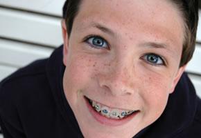 Zahnspange - wer lächelt, gewinnt