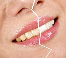 Zahnverfärbungen im Vergleich
